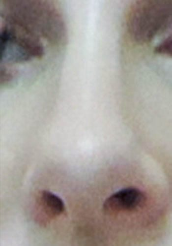 Pełna Korekta Nosa 10
