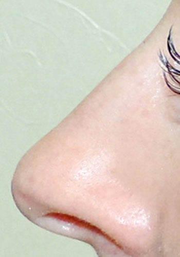 Operacja plastyczna nosa 7