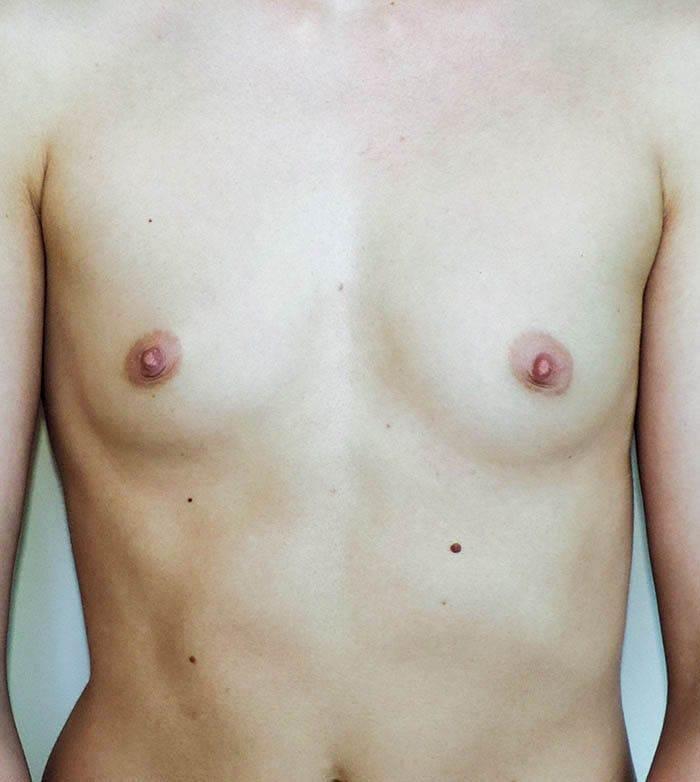 Powiększanie Piersi Implantami 7
