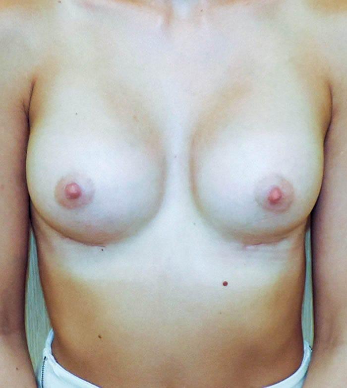 Powiększanie Piersi Implantami 8