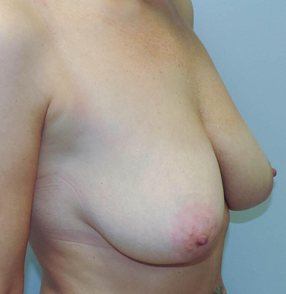 Podniesienie Piersi z Implantami 13