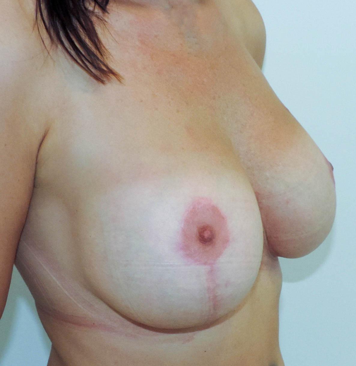 Podniesienie Piersi z Implantami 14