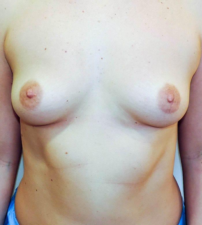 Powiększanie Piersi Implantami 11