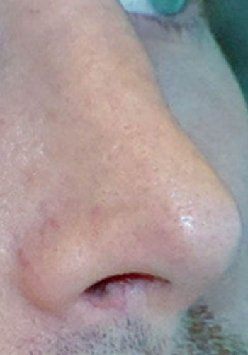 Pełna Korekta Nosa 12