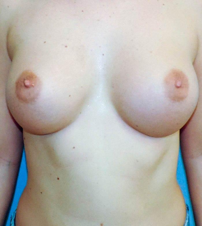 Powiększanie Piersi Implantami 12