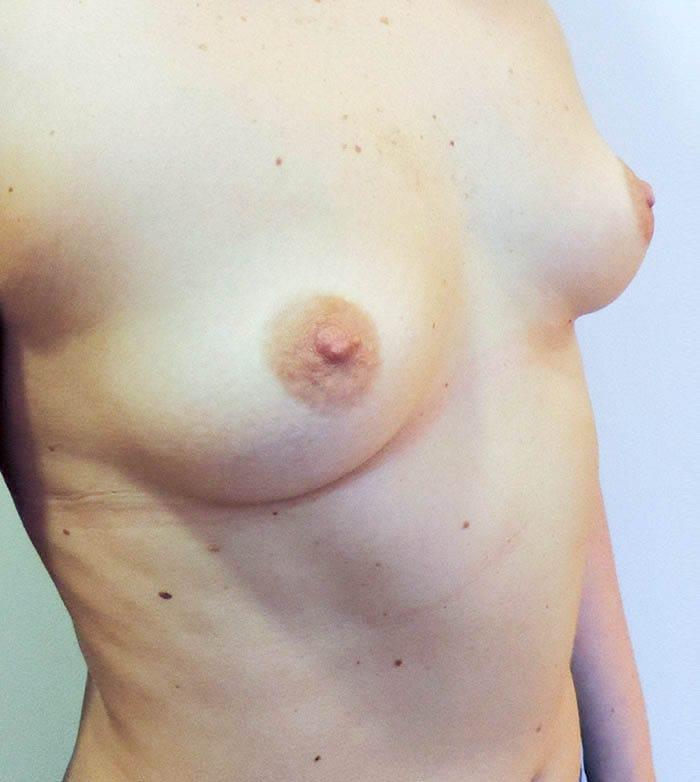 Powiększanie Piersi Implantami 13