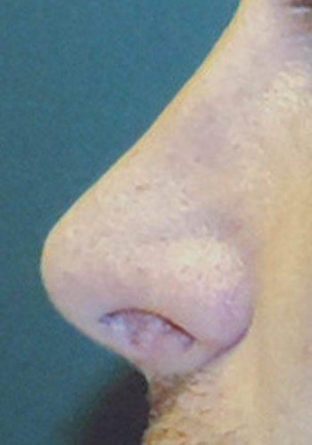 Pełna Korekta Nosa 14