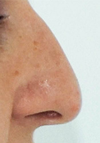 Pełna Korekta Nosa 15