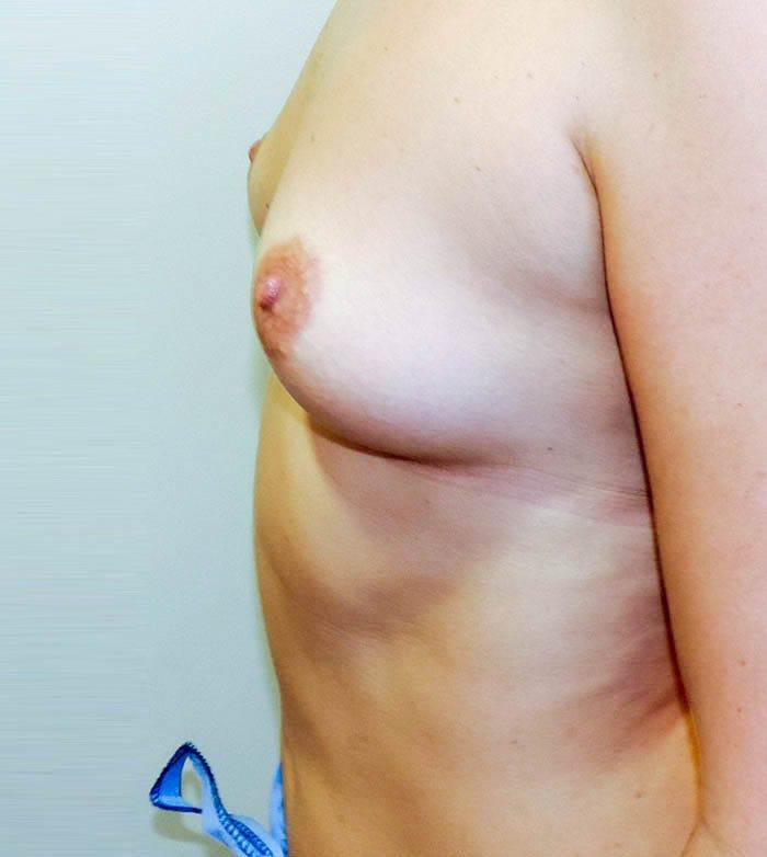 Powiększanie Piersi Implantami 15