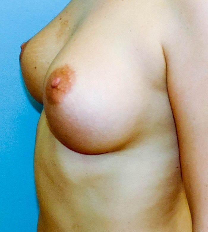 Powiększanie Piersi Implantami 16