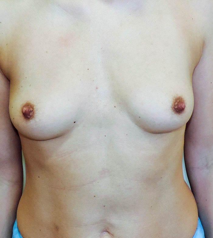 Powiększanie Piersi Implantami 19