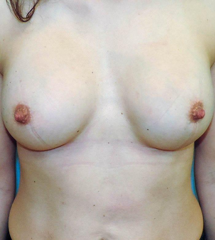 Powiększanie Piersi Implantami 20