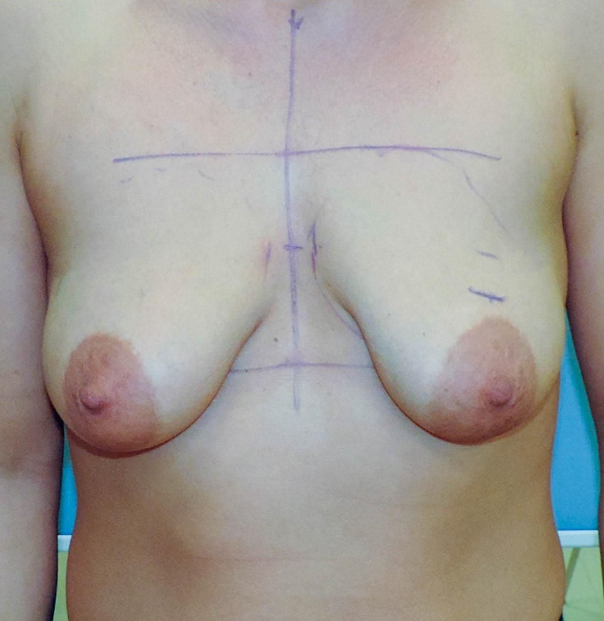 Podniesienie Piersi z Implantami 9