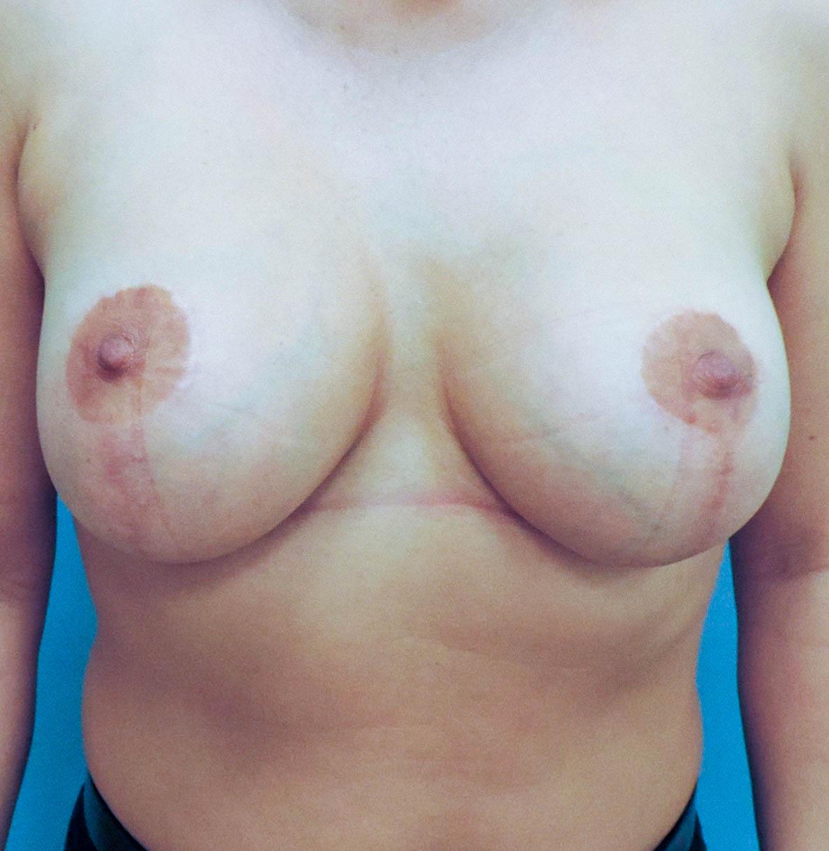 Podniesienie Piersi z Implantami 10