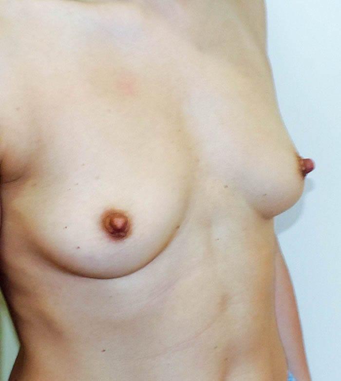 Powiększanie Piersi Implantami 21
