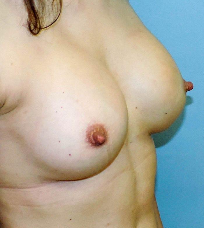 Powiększanie Piersi Implantami 22