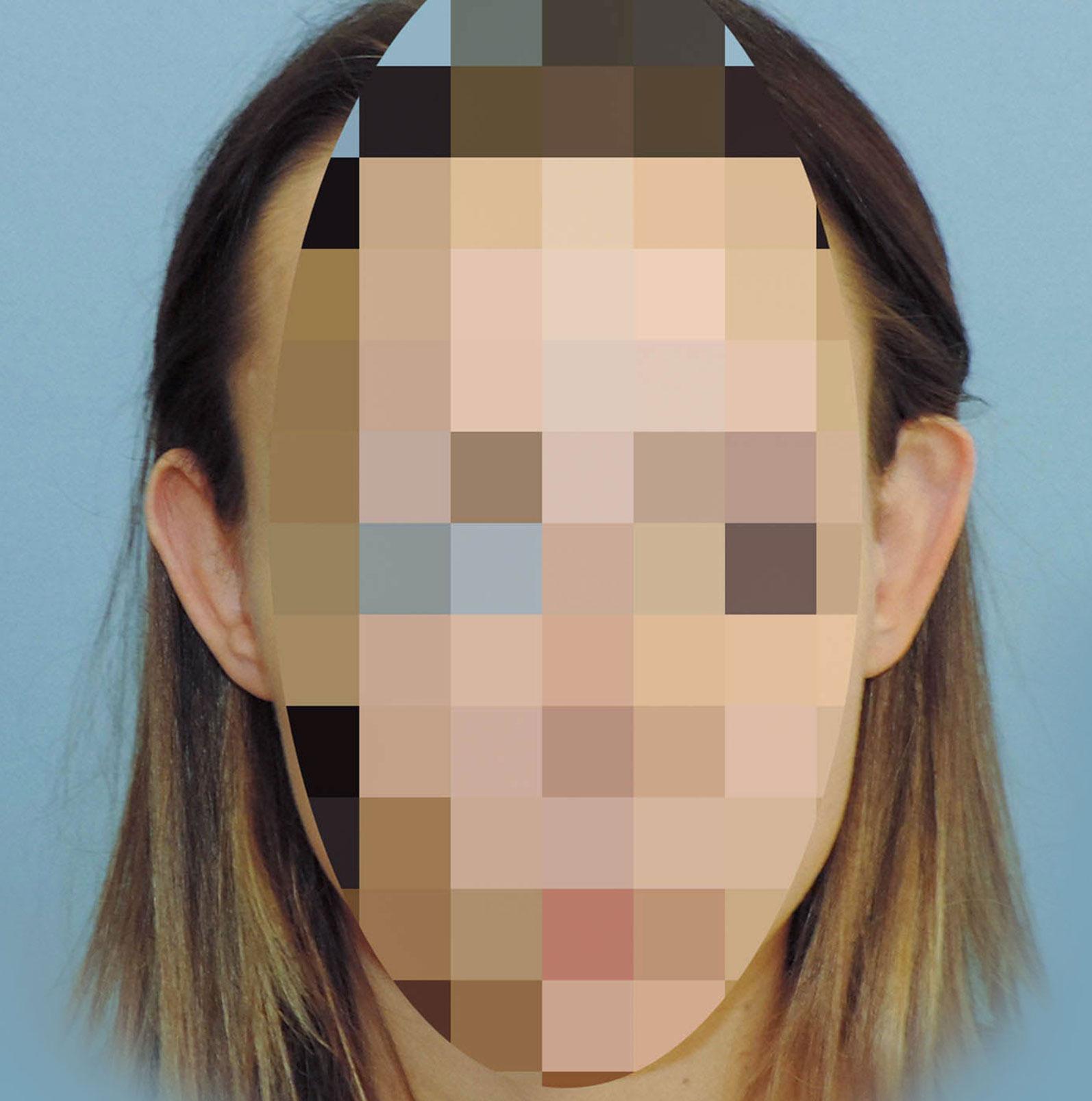 Korekcja Odstających Uszu 5