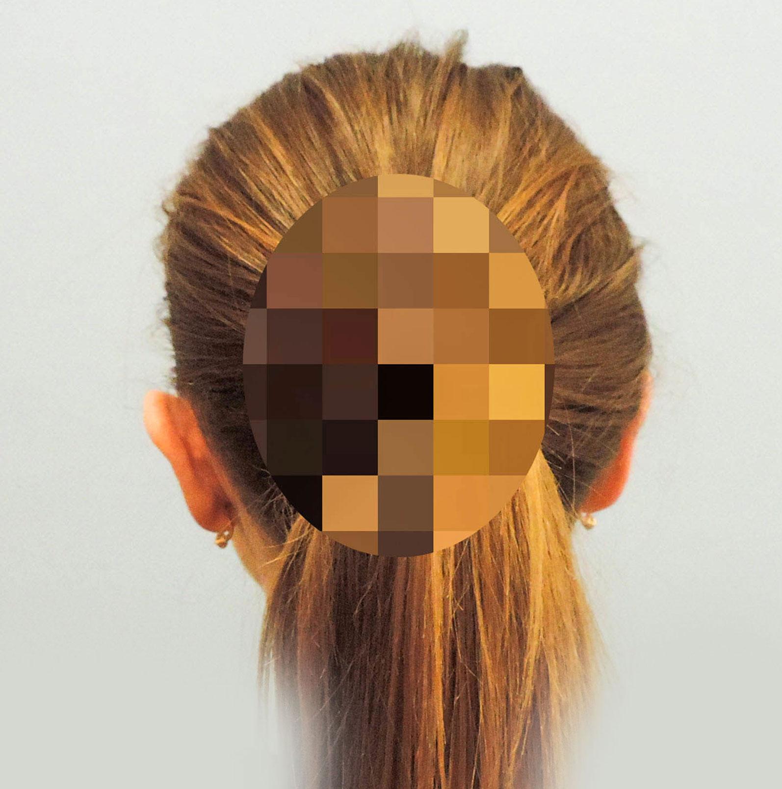 Korekcja Odstających Uszu 10