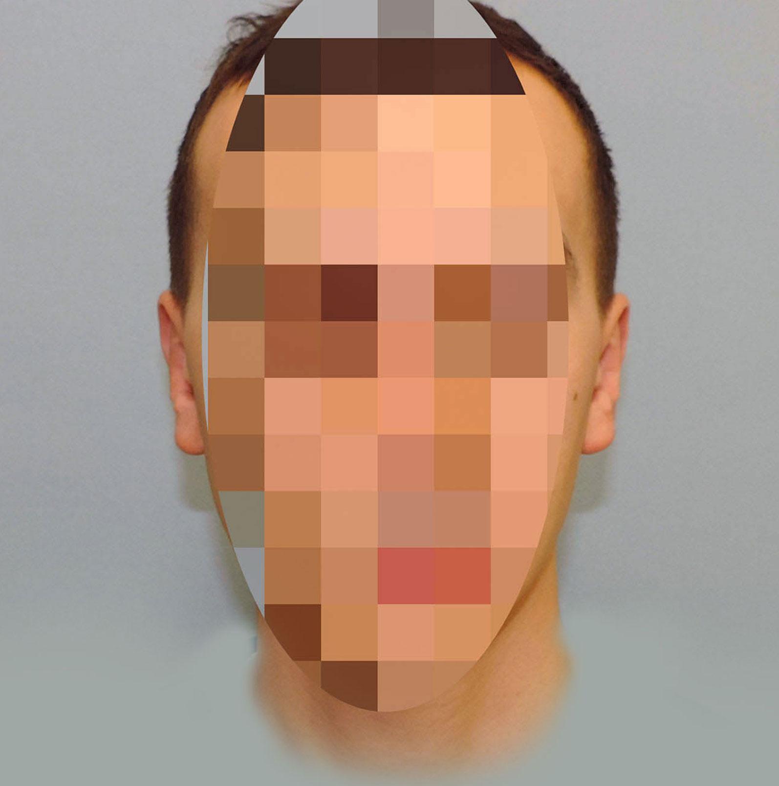 Korekcja Odstających Uszu 14
