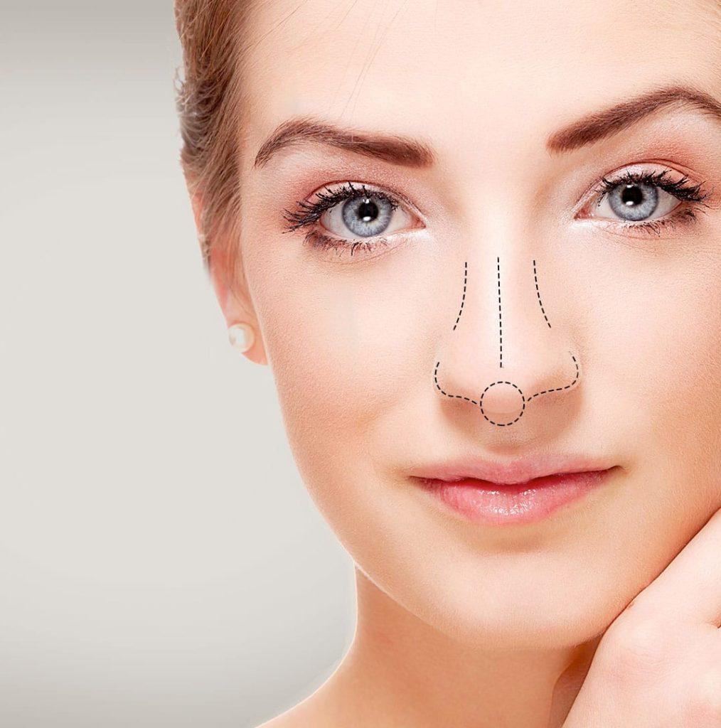 nose4